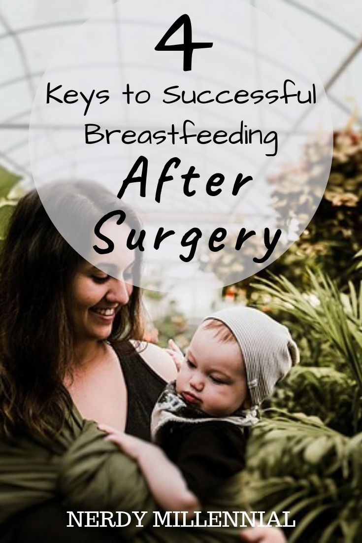 4 Keys to Successful Breastfeeding After Surgery