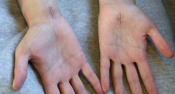 What Is Carpal Tunnel Syndrome? And What Can You Do About It?